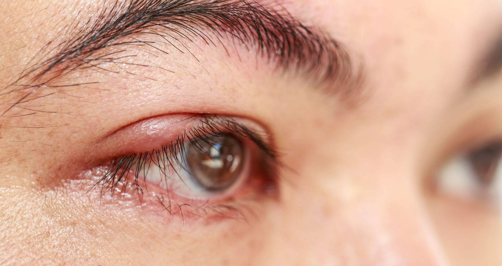 глаз покраснел и слезится что делать