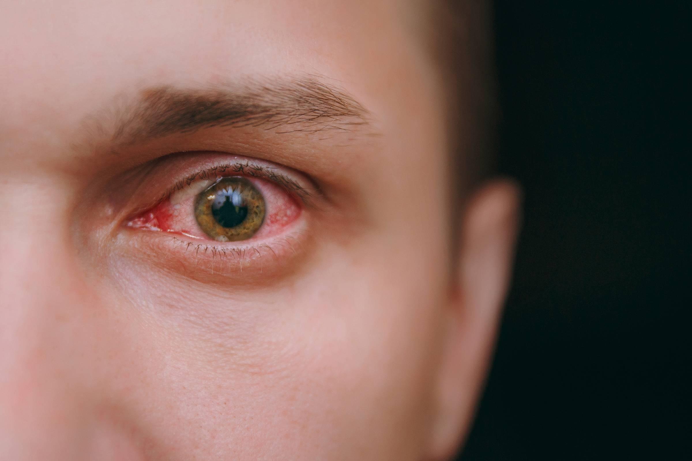После линз глаза красные и болят что