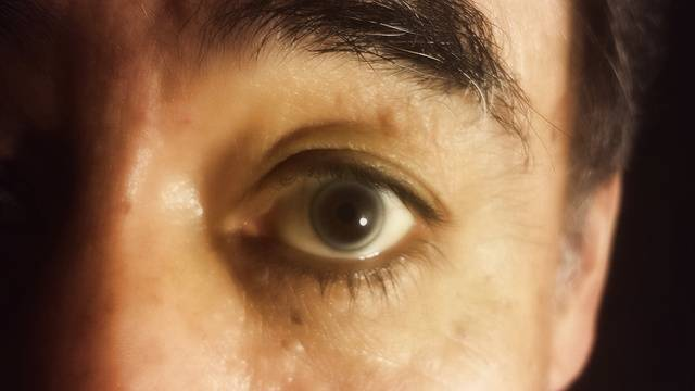 Способы лечения пелены перед глазами
