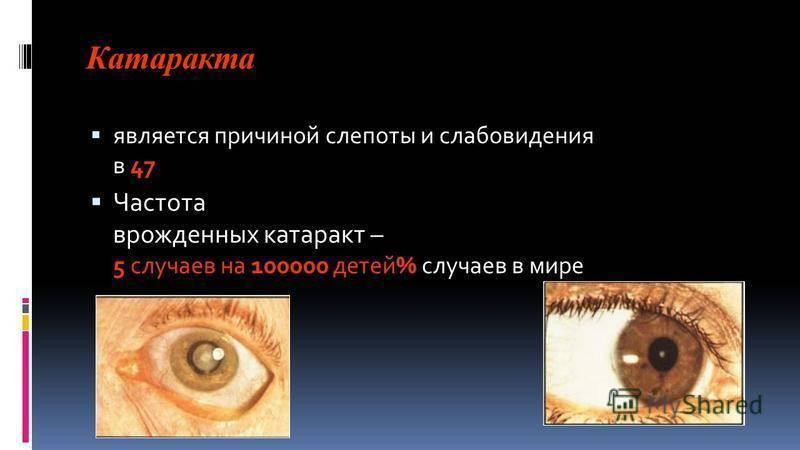 Слепнет правый глаз. почему один глаз ослеп? причины возникновения временной слепоты