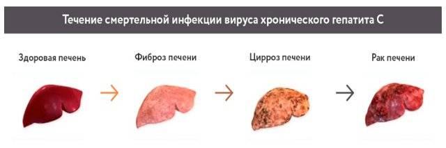 Боли в области печени: почему они возникают и что делать для их устранения?