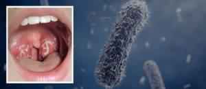 Бактериолог о стрептококке и стрептококковой инфекции: виды, патогенность, симптоматика, лечение