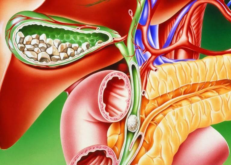 Как диагностируется водянка желчного пузыря?