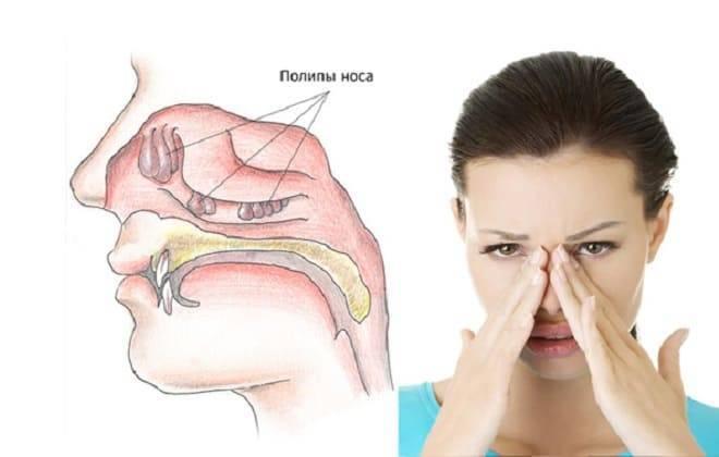 полипы в пазухах носа