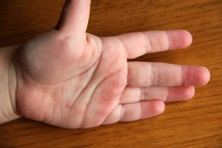 чесотка на пальцах рук