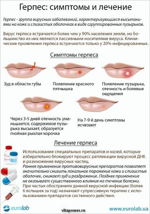 Диета при герпесе: при опоясывающем, генитальном, на теле, губах, во рту, 2, 6 типа - лечение у взрослых и детей, продукты, меню