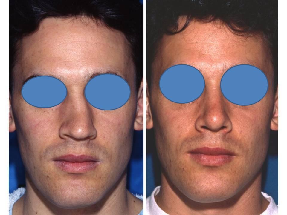 признаки искривления носовой перегородки