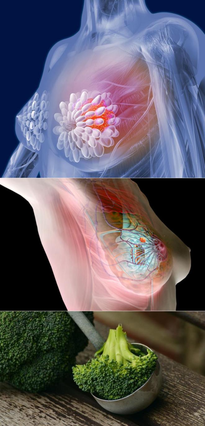 Надежные рецепты народной медицины от рака молочной железы