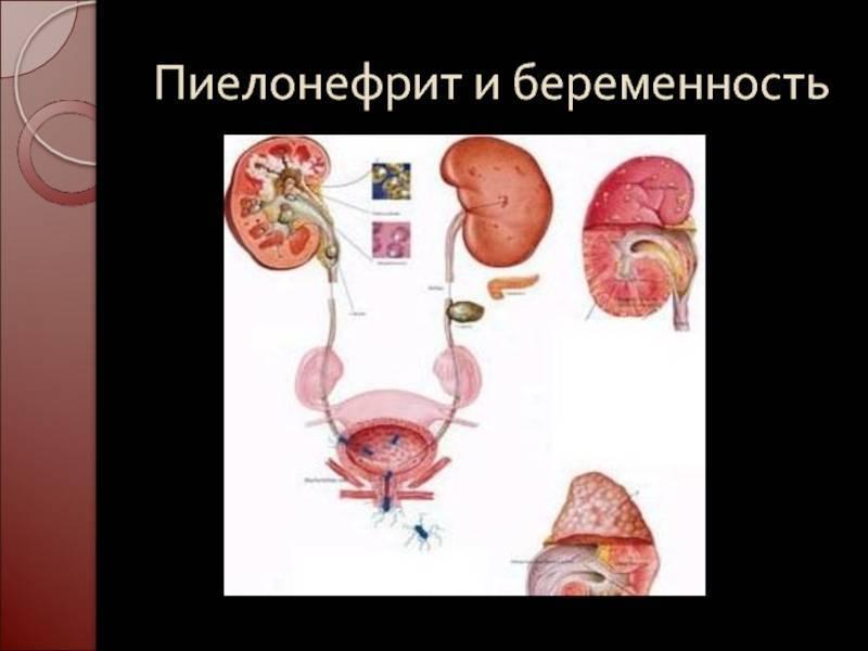 цистит или пиелонефрит как отличить