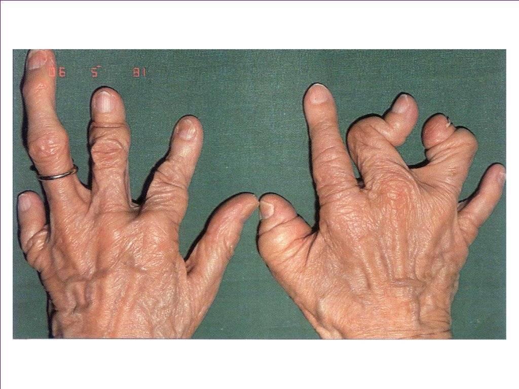псориаз болят суставы