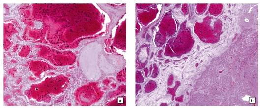 Кавернозная гемангиома печени: что это такое, диагностика, лечениедиагностика и лечение печени и желчного пузыря