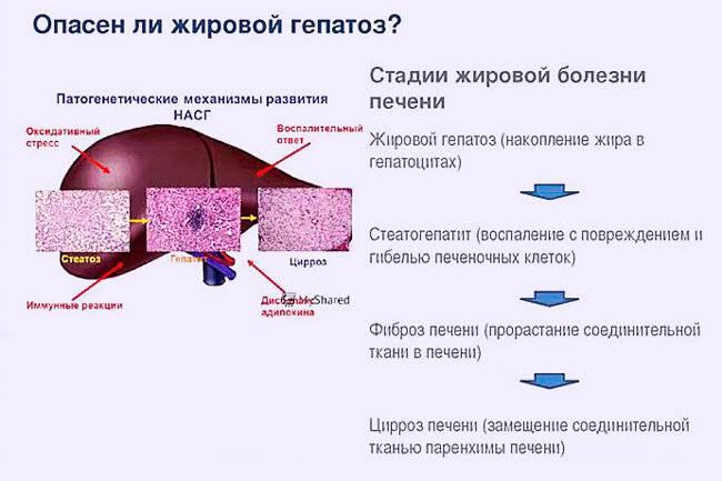 Жировой гепатоз печени: лечение народными средствамидиагностика и лечение печени и желчного пузыря