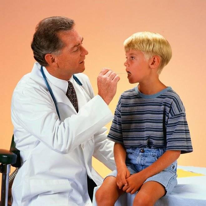 Язвы в горле: как и почему возникают, виды, симптоматика, диагностика, терапия