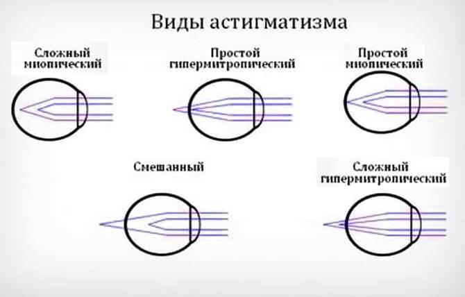 Миопический астигматизм обоих глаз, простой, высокой и слабой степени, что такое, в чем разница с миопией, близорукостью, лечение