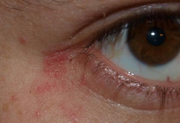 Красные пятна под глазами и шелушение