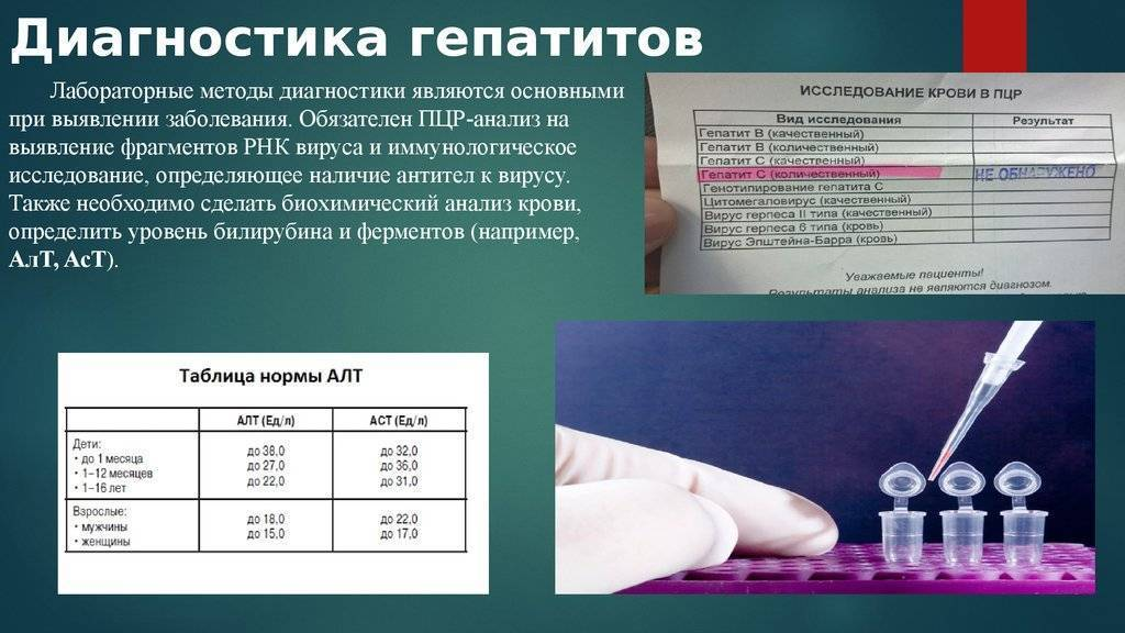 Анализы на гепатиты: от «а» до «g»