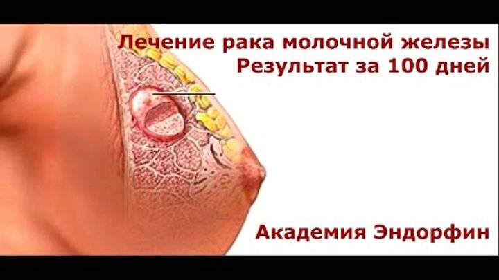 Рак молочной железы, лечение народными средствами