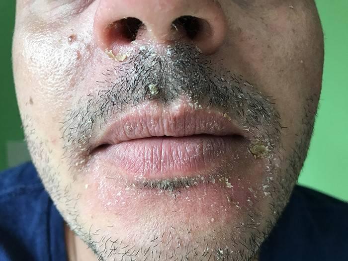 дерматит на лице у женщины