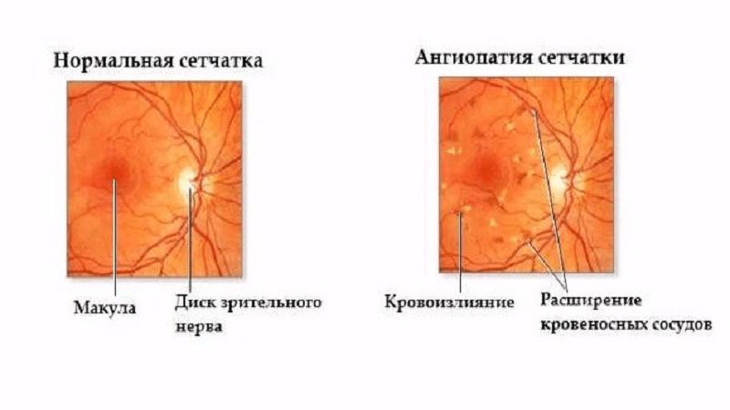 В чем опасность ангиопатии сетчатки глаз у ребенка?