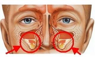 Пневматизация пазух носа опасно ли это