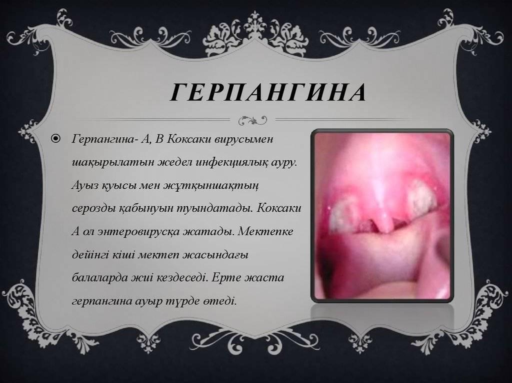 как лечить герпетическую ангину у детей