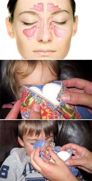 можно ли греть нос при заложенности носа