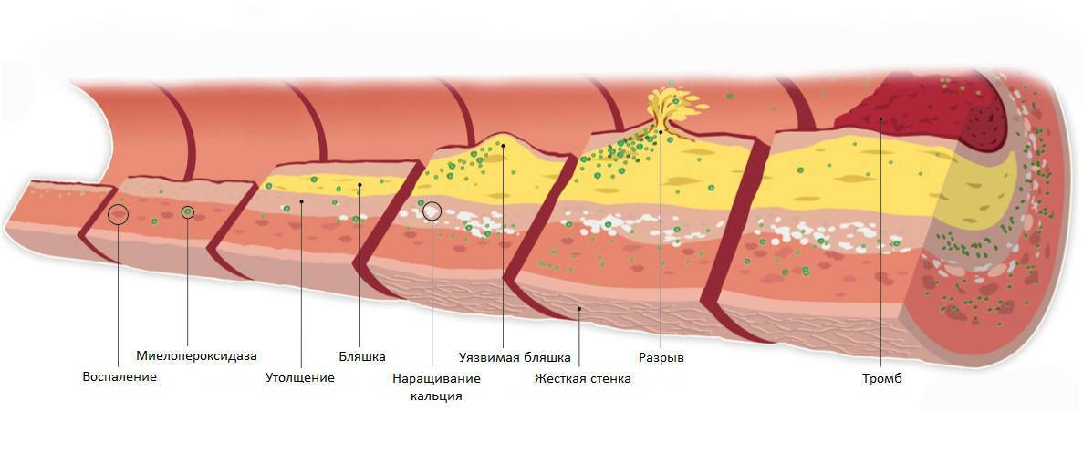 Атеросклеротические бляшки: симптомы, стадии развития, лечение