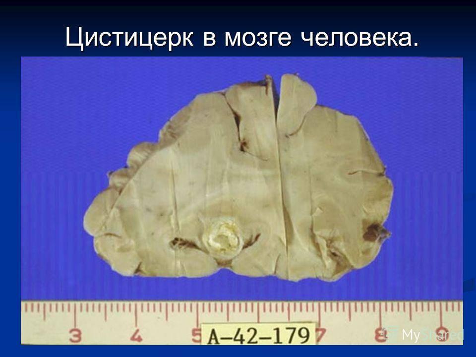 Черви в мозгу человека симптомы