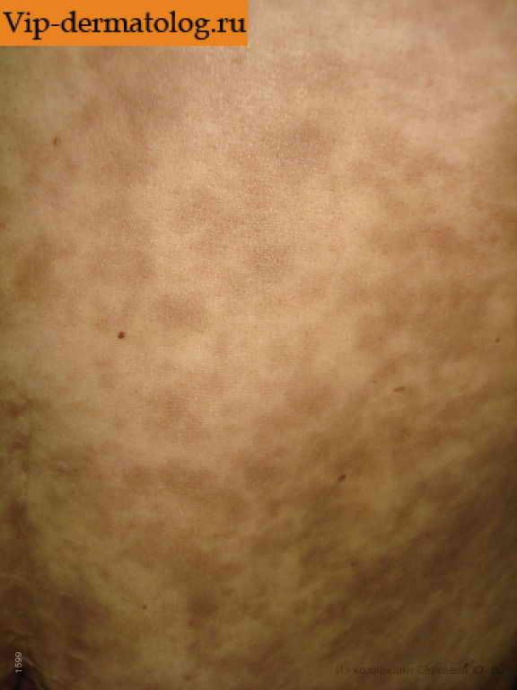 Кожная сыпь при заболеваниях печени фото