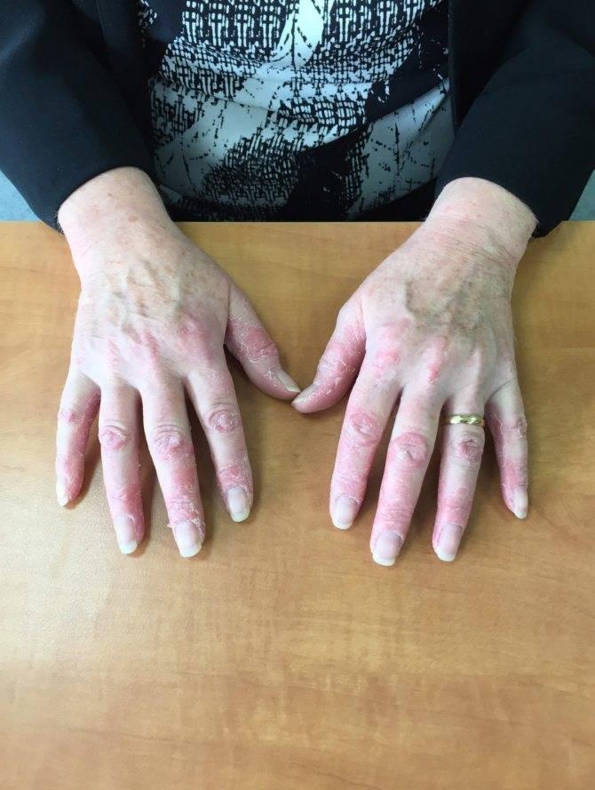 псориаз кистей рук