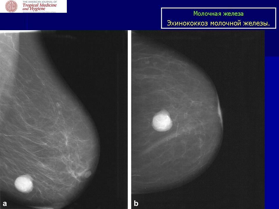 Фиброаденома молочной железы: удалять или нет