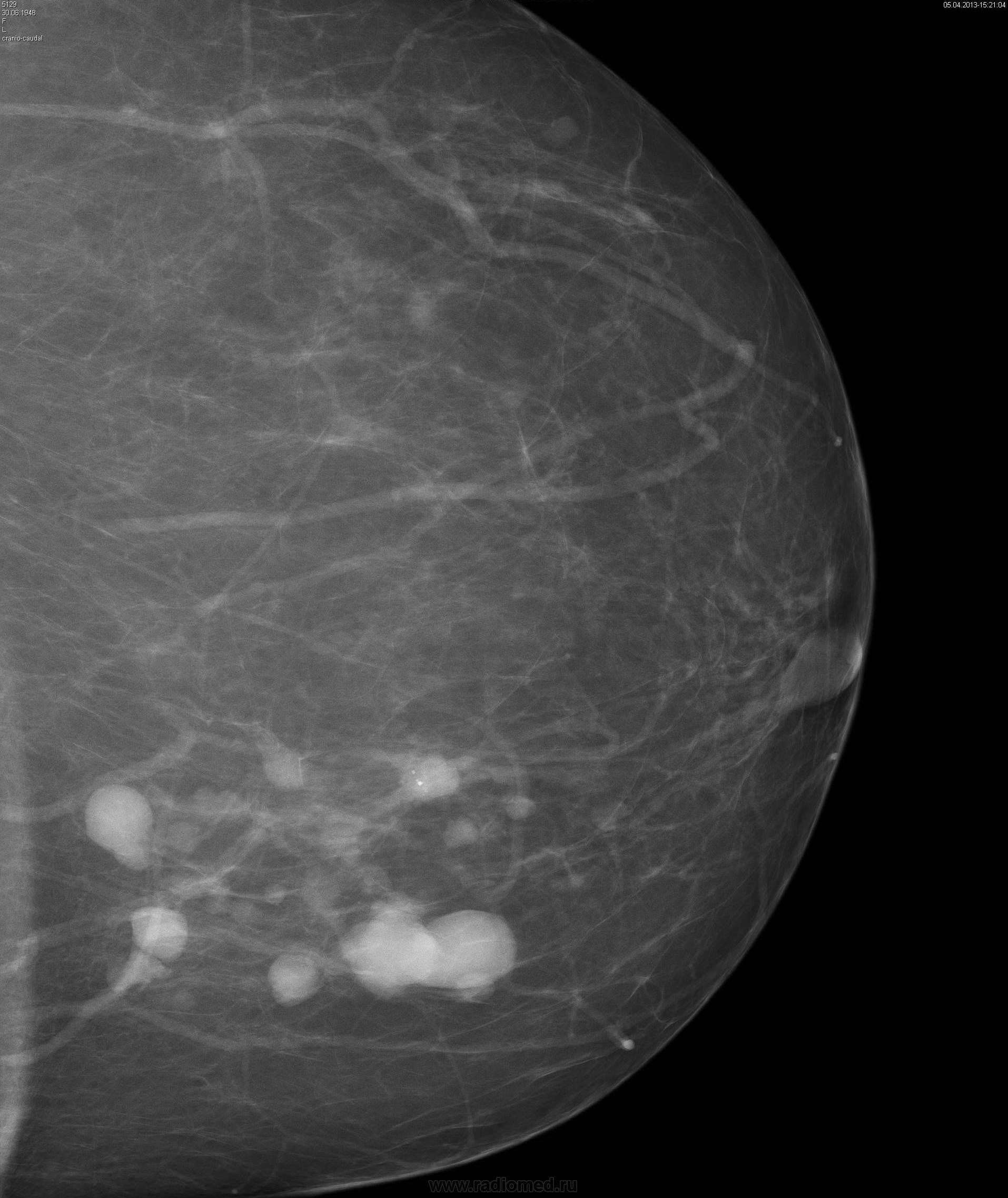 склерозирование кисты молочной железы