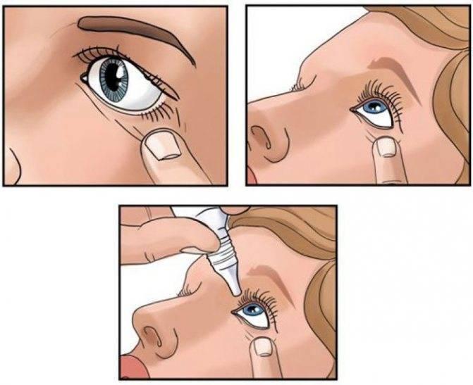 как правильно капать в нос
