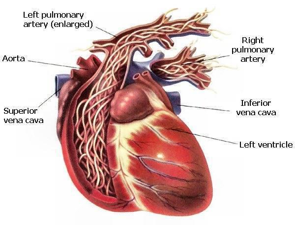 Глисты в сердце у человека: особенности и профилактика