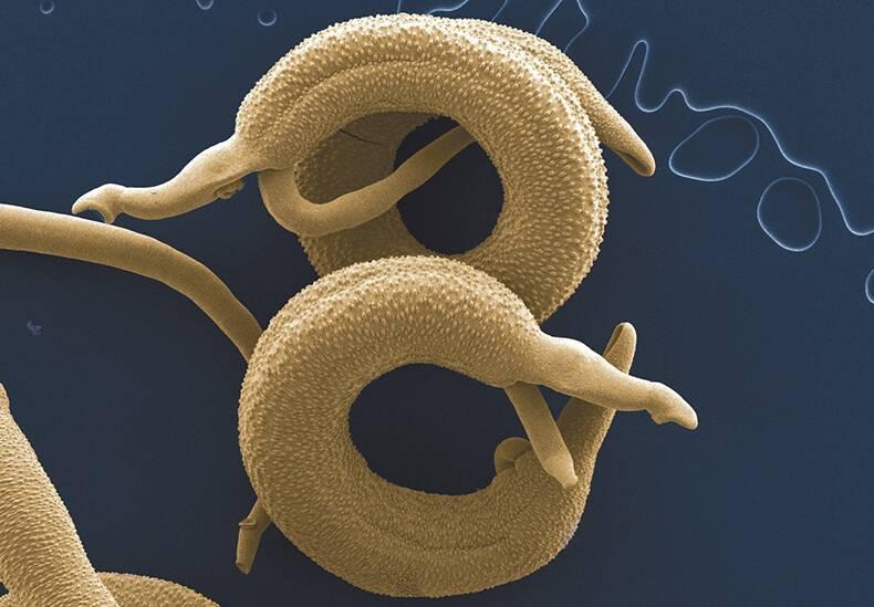 Симптомы и способы лечения глистной инвазии у взрослых