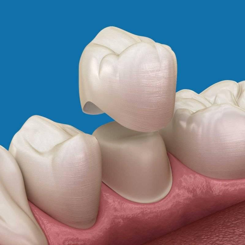 стоматология коронка