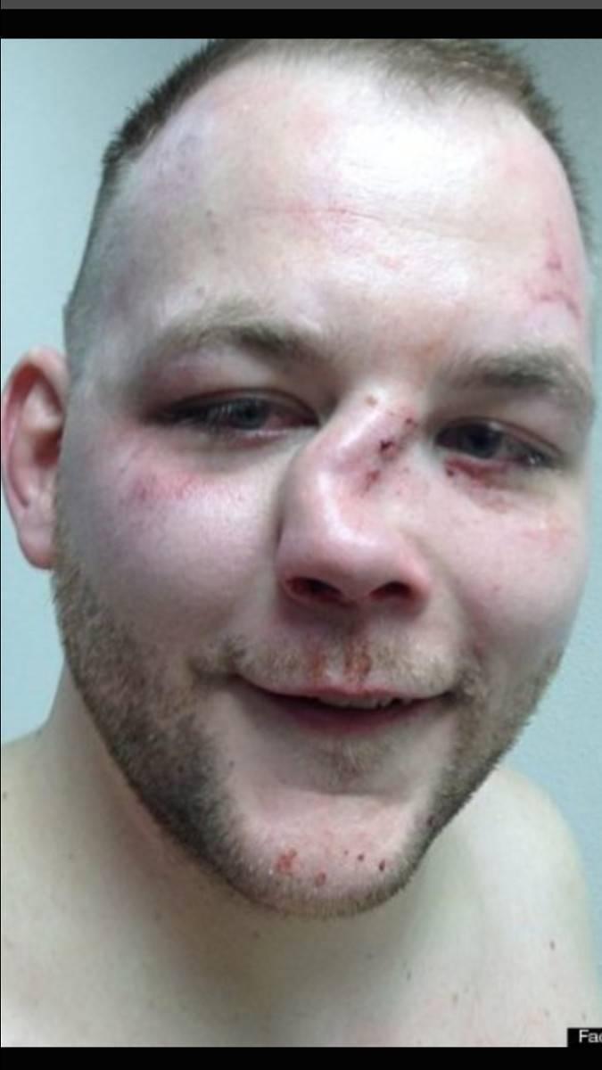 Перелом носа. причины, симптомы, виды, первая медицинская помощь и реабилитация