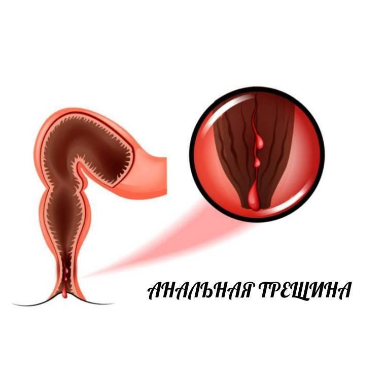 Симптомы и лечение анального герпеса у мужчин и женщин