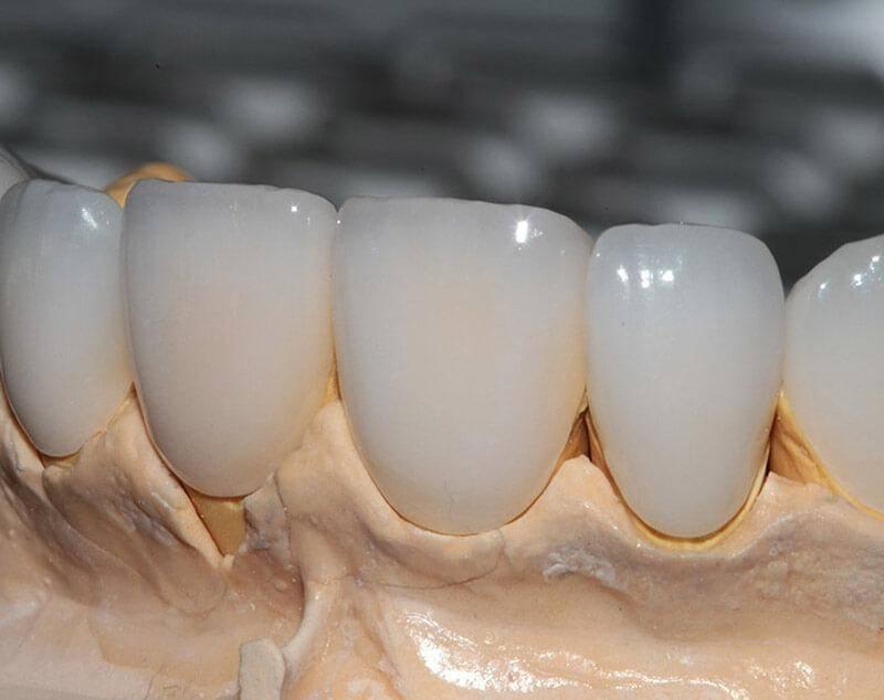 Керамические коронки на зубы: достоинства, разновидности, особенности установки и цена