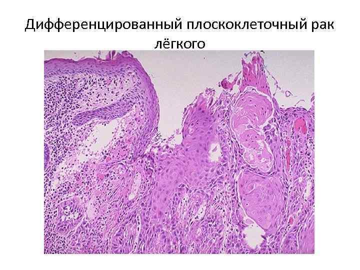 Опухоль гортани