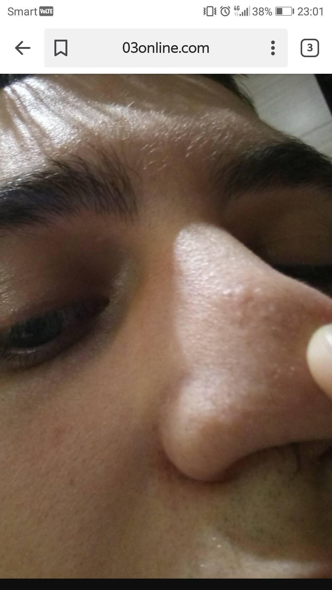 Мазь от болячек в носу и корочек. чем помазать? от простуды и зуда в носу