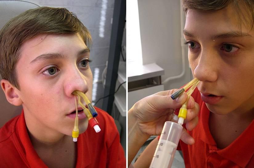 Ямик-процедура для лечения гайморита