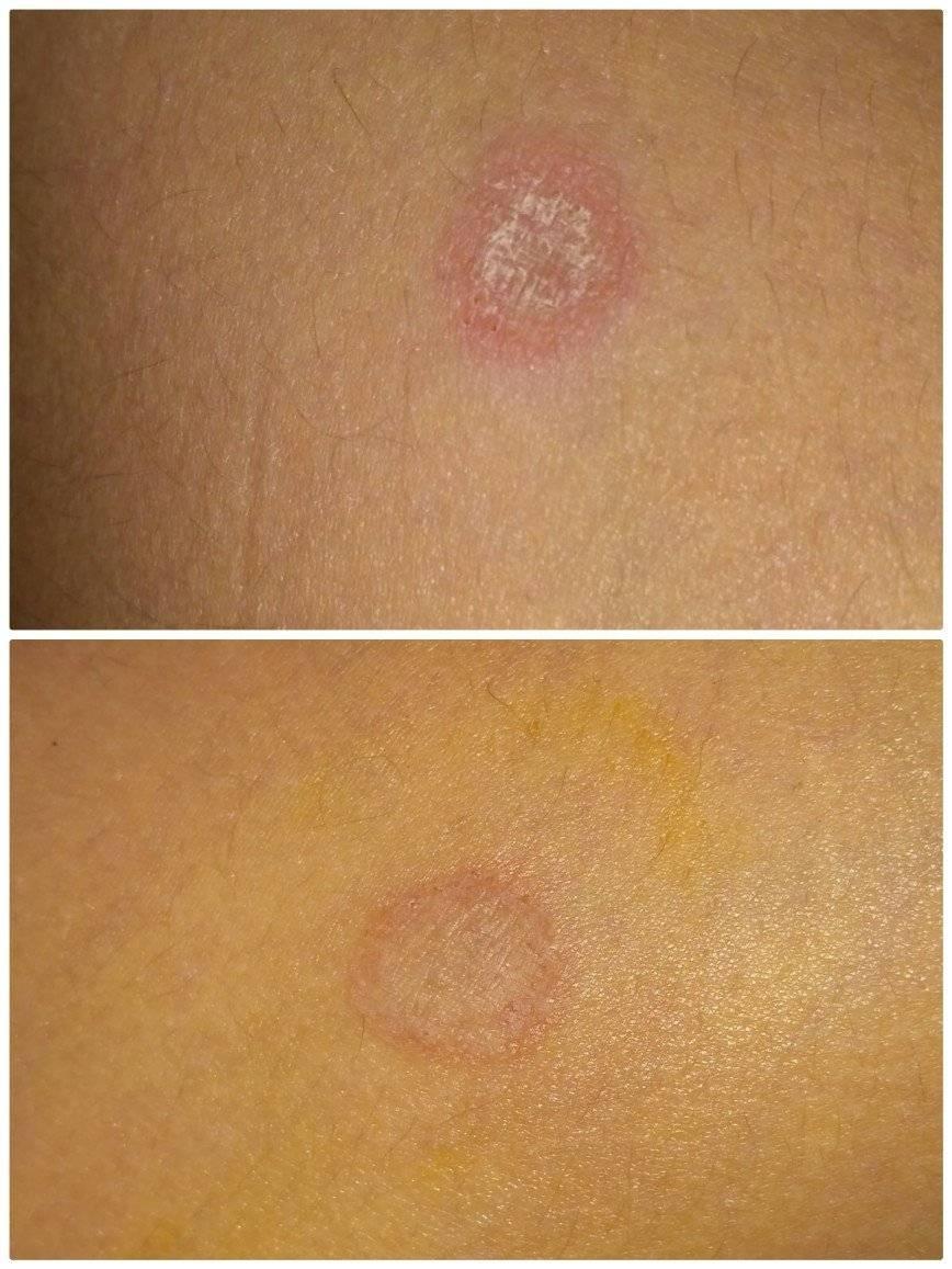 Как отличить стригущий лишай от дерматита