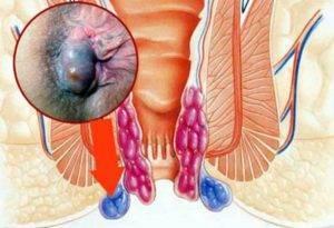 Почему обостряются симптомы геморроя перед месячными