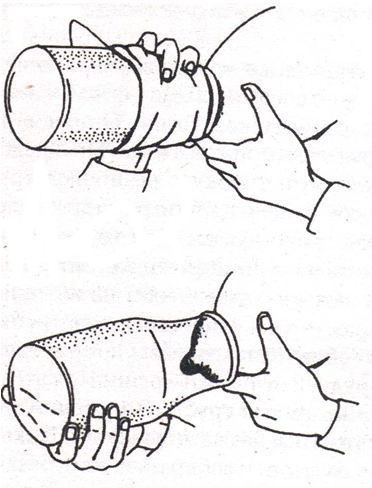 как расцедить грудь при лактостазе