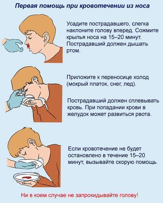Кровь из носа сильная головная боль