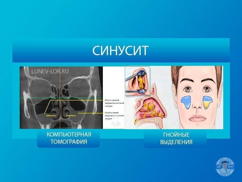 Симптомы синусита у взрослых и эффективное лечение
