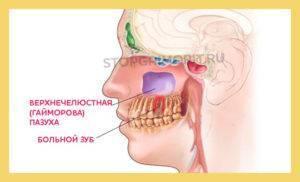 Почему болят зубы при гайморите