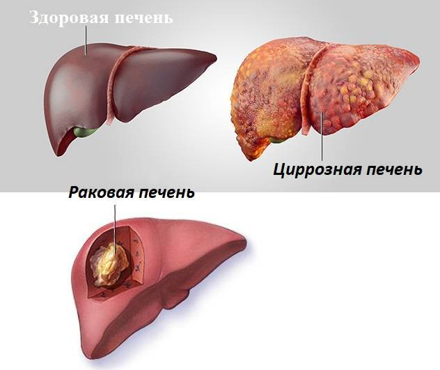 Самый опасный вид гепатита