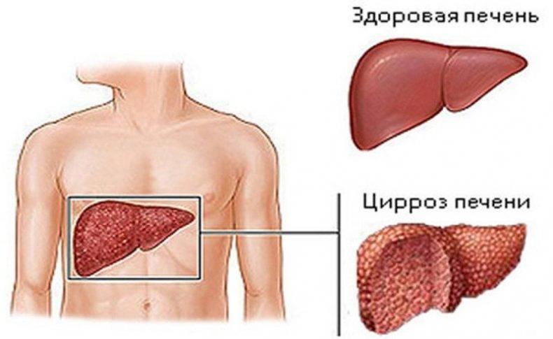 Где можно работать с гепатитом с